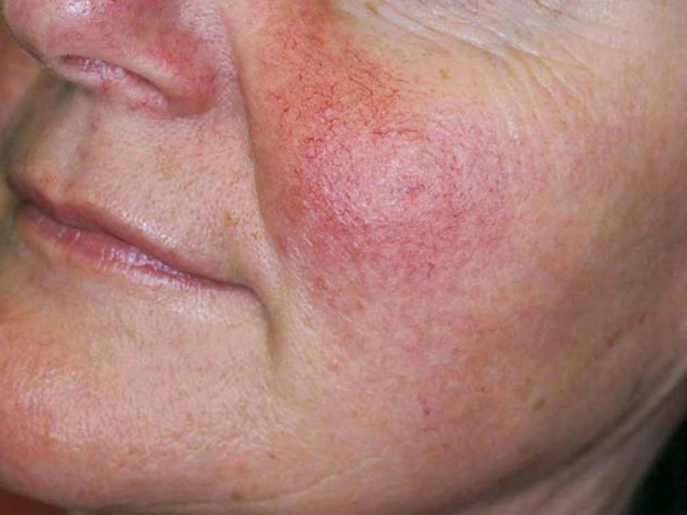 Treat rosacea, redness, spider veins