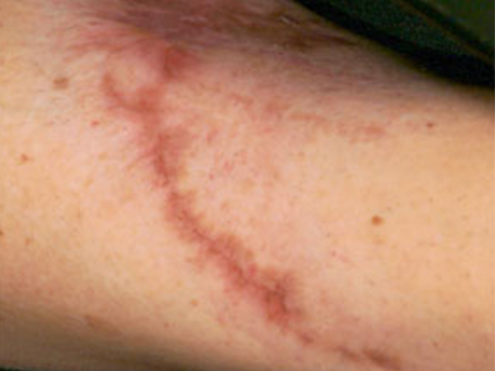 Treat surgical scars and other scars