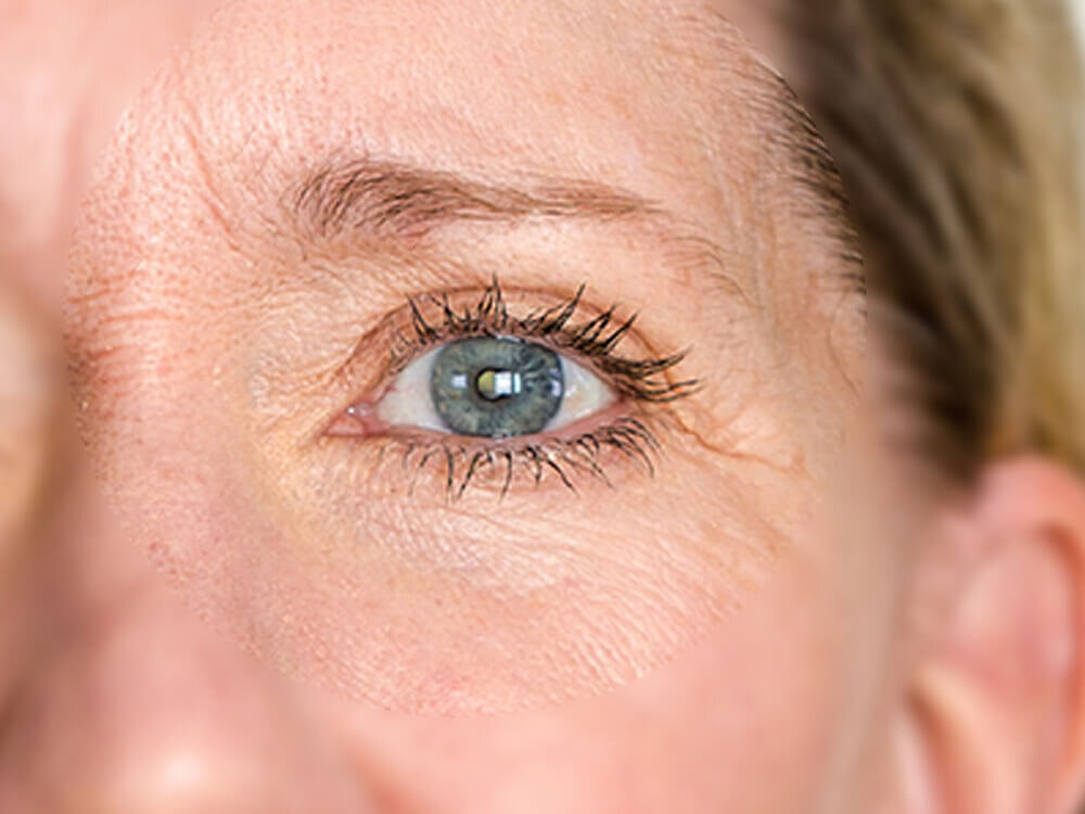 Treat wrinkles around the eyes and forehead
