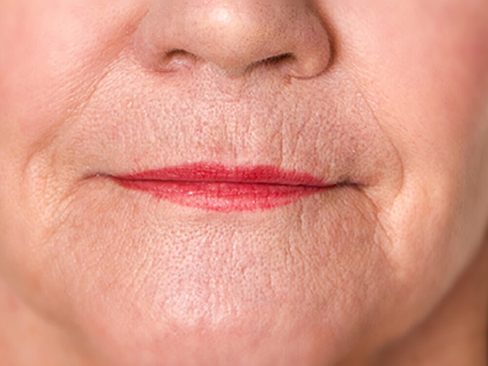 Treat wrinkles around the mouth