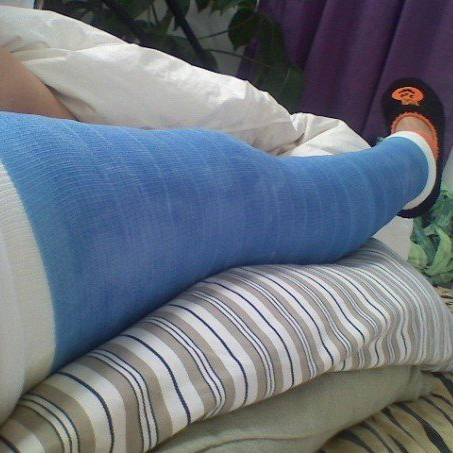 This is one of several casts I was in. They recasted it every 10 days because of atrophy.