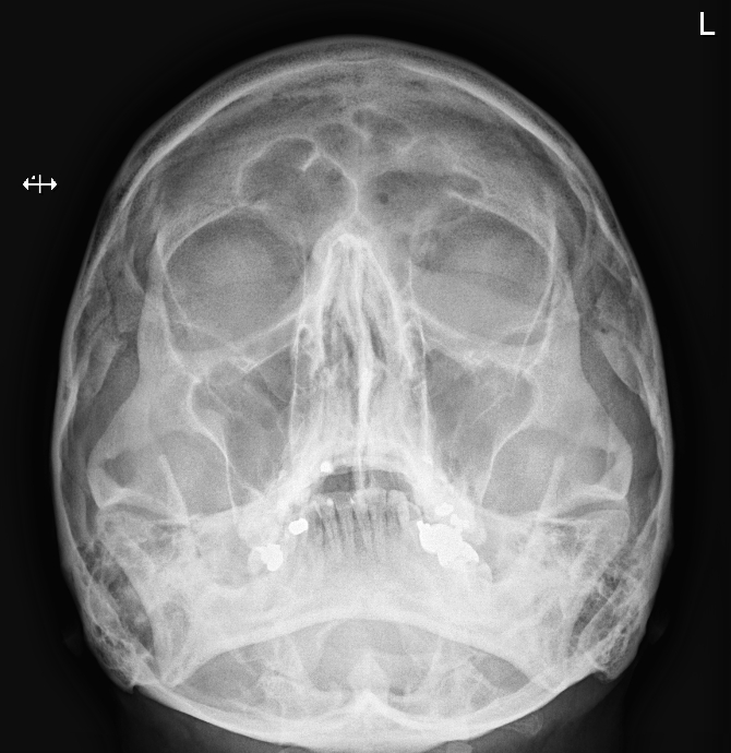 SKULL Radiograph  We have lots of other images that you may not see very often too - like OPGs, nuclear medicine and barium studies