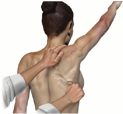 Figure 1: an example of SMP - the clinician assists scapular upward rotation in effort to reduce pain and increase range of motion during shoulder flexion.