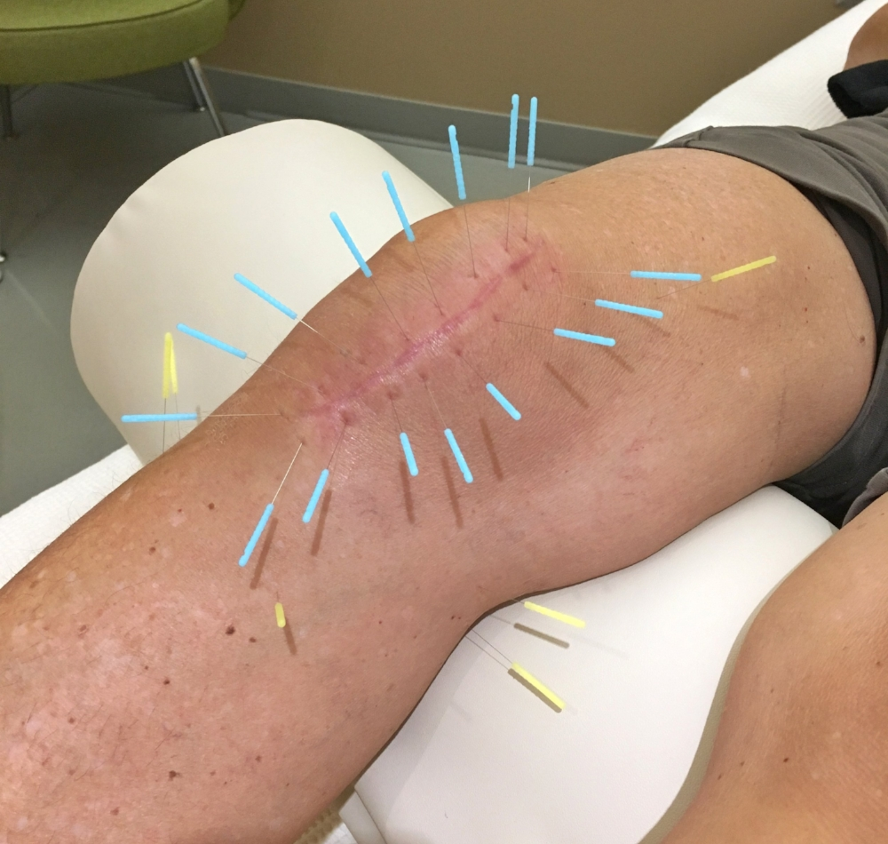 Surround the Dragon protocol is a treatment used for many conditions, but in this case it is being used on a scar.  This can help stimulate fibroblasts to lay down a new matrix of fibrous tissue along, prevent excessive scar tissue formation, and break down old scar tissue.