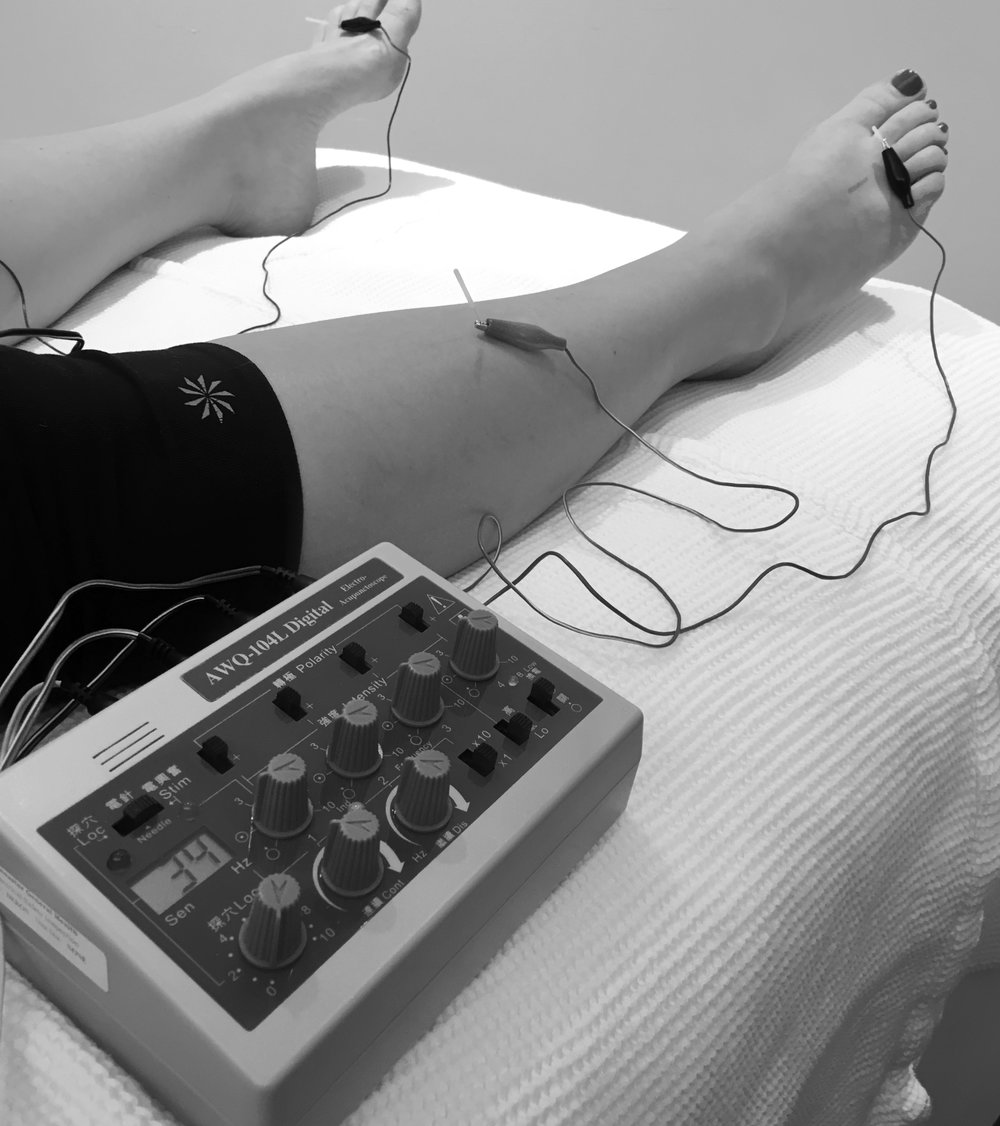 Electro-acupuncture is applicable for many conditions including, but not limited to, hot flashes, neurological conditions (neuropathy, autonomic nervous system issues, shingles, Bell's Palsy, etc), pre/post surgical, pain (back, neck, joints, muscles, etc), and others.