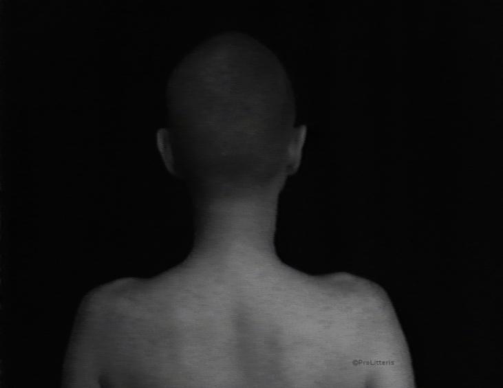 La dame au crâne rasé 1978