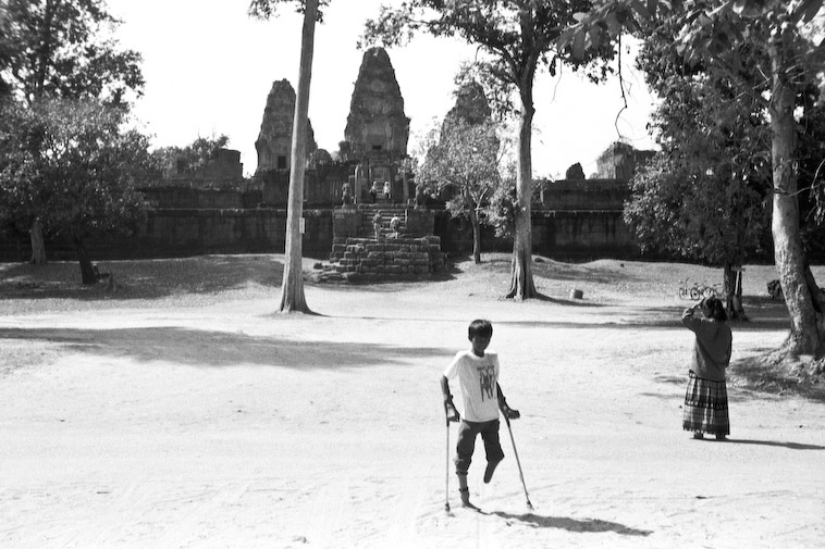 Image of a young landmine victim in Cambodia. Landmine clearance is still needed prior to archaeological fieldwork in remote areas of the country. Progressive archaeological research is a motivating force for landmine clearance in Cambodia today. Image taken in 2001, courtesy of SKY.