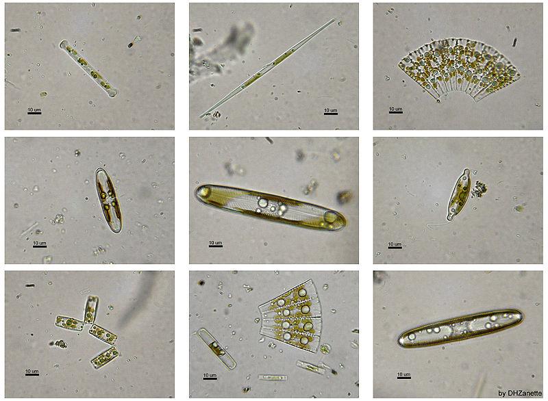 Freshwater micro-life   .
