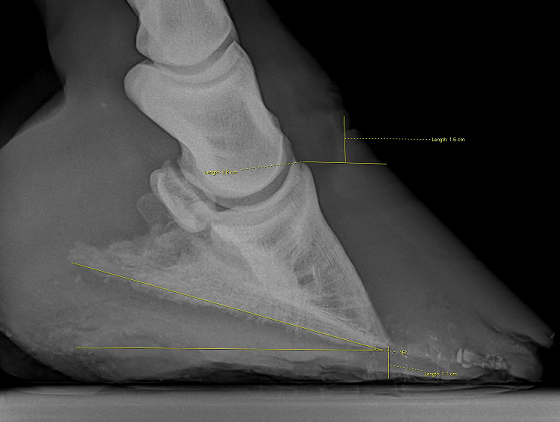 Here is an example of a horse with thinning sole depth due to rotation and sinking associated with laminitis.