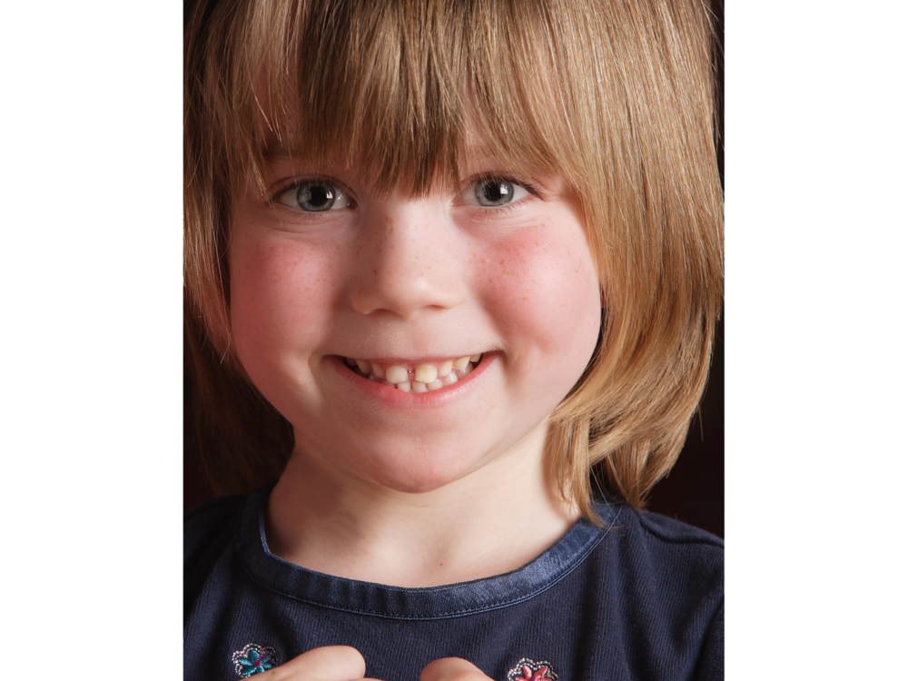 Smiling girl close-up portrait for charitable foundation