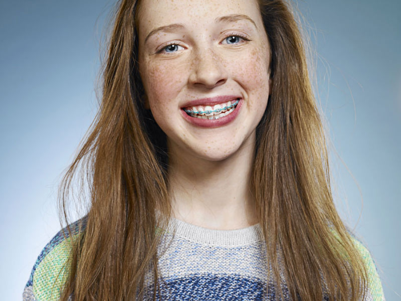 Smiling red-head girl with braces