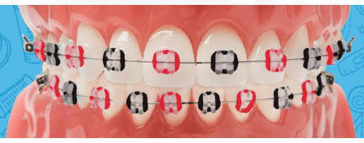 orthodontictiesonbraces