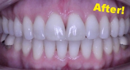 This patient was treated in our office with 15 months of Clear Aligner Therapy (Invisalign).