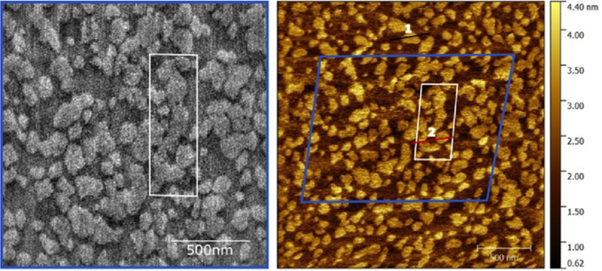 High-speed (left) and normal speed (right) AFM images of the same area of a model multi- lipid component neuronal membrane. The contrast corresponds to the slightly different height of each lipid.  Such membranes are very soft, almost liquid-crystal-like, yet the disruption by the high-speed tip is surprisingly almost non-existent.  Image courtesy of Morgan Robinson & Zoya Leonenko (University of Waterloo, Canada) and Loren Picco, Ravi Sharma & Mervyn Miles (University of Bristol, UK).