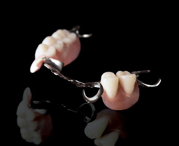 Wironium Cast Partial Dentures