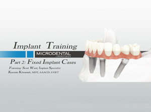 Implant Part 2