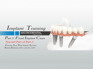 Implant Part 2.2 (Second Part of Part 2)