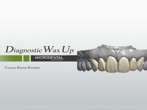 Diagnostic Wax Up