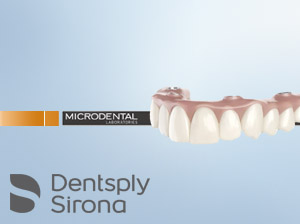 Implants and Removable Restorations