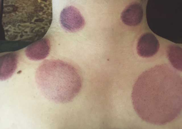This patient had extreme wind cold in the neck and shoulder region which caused blood stagnation creating the purple cupping marks displayed above.