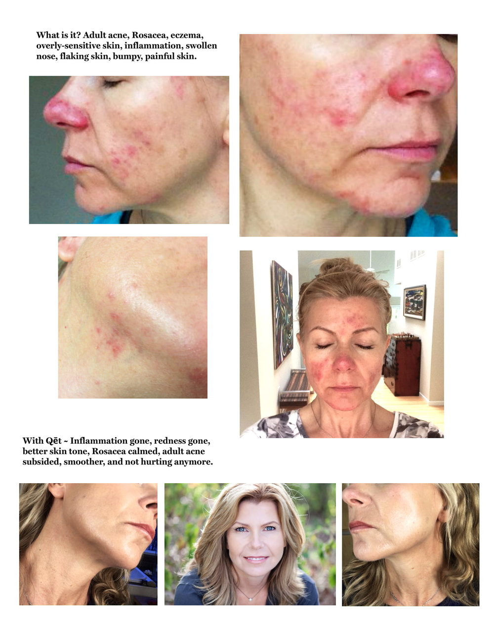 Qet-Botanicals-Lisa-Brill-Before-and-After-Rosacea-Adult-Acne (1)-1.jpg