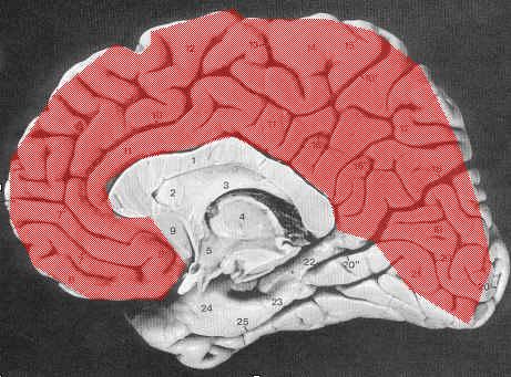 intrahemispherefissure.jpg
