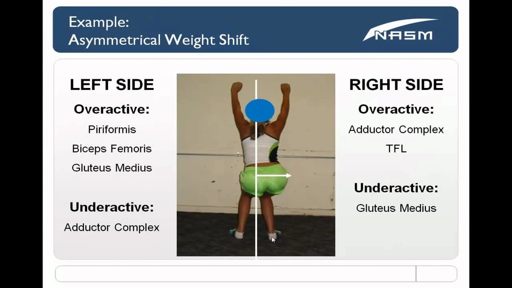 Muscle imbalance at the hip complex