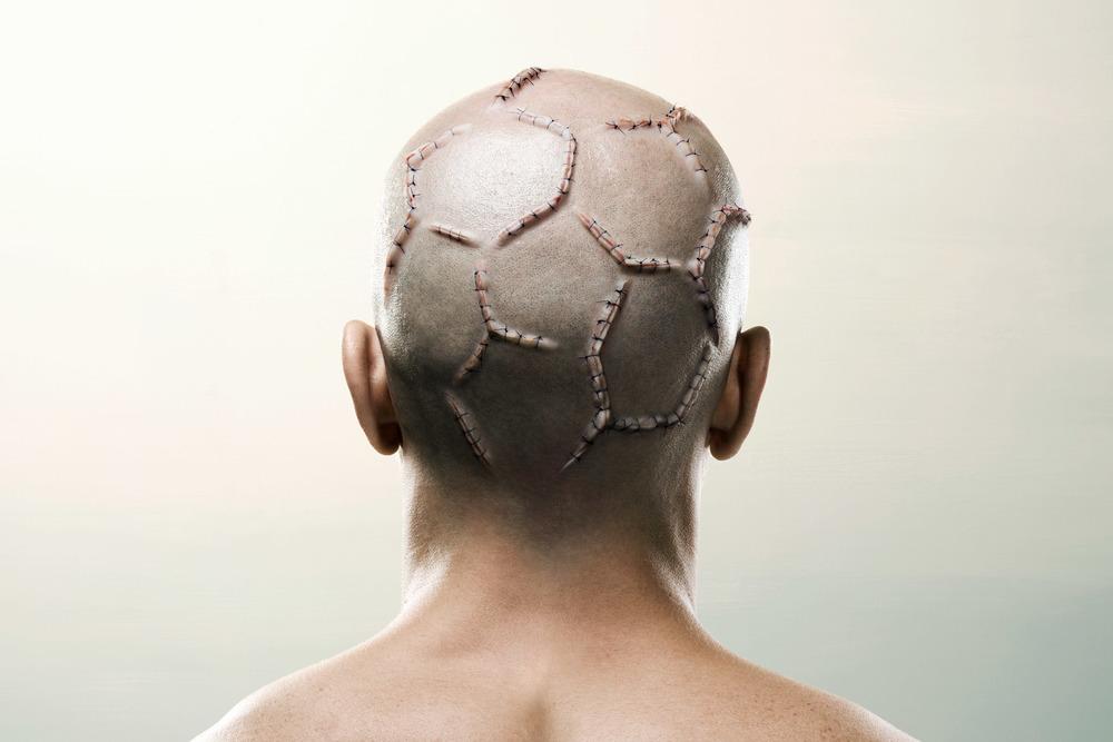 Werbung für ein Buch über Fussball-Hooligans / Ruf Lanz Zürich / Winner of the New York Photo Awards 2010