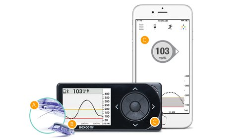 Medicare now offers reimbursement for the  Dexcom G5 Mobile System  for members who have type 1 or type 2 diabetes and intensively manage their blood sugar levels with insulin.