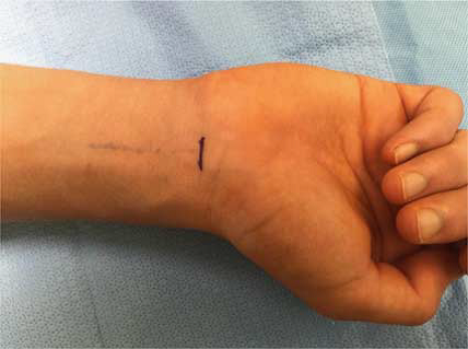Incision used for palmaris longs graft harvest