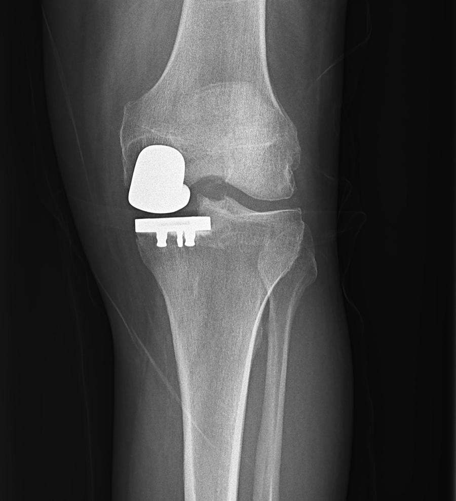 Custom Partial Knee Replacement