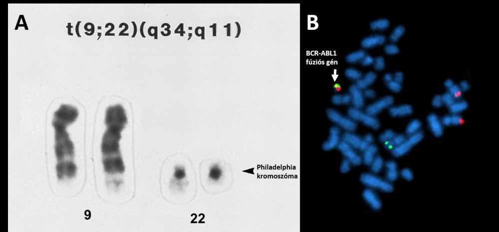 A: A CML-re diagnosztikus Philadelphia kromoszóma kimutatása cytogenetikai vizsgálattal. A 9-es és 22-es kromoszómák átrendeződése révén egy a normálisnál hosszabb 9-es, és egy rövidebb 22-es kromoszóma jön létre, mely utóbbit Philadelphia (Ph) kromoszómának nevezünk.   B:  BCR-ABL1 génátrendeződés kimutatására alkalmas FISH (fluoreszcens in situ hibridizáció) vizsgálat. Látható, hogy az átrendeződés révén a külön színnel jelölt BCR és ABL1 gének egymás mellé kerültek, így igazolható a fúziós gén megléte.