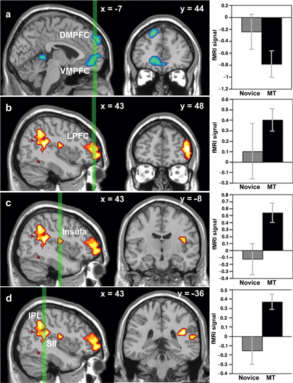 fMRI scans reveal changes in the brain after only eight weeks of mindfulness and emotional intelligence training