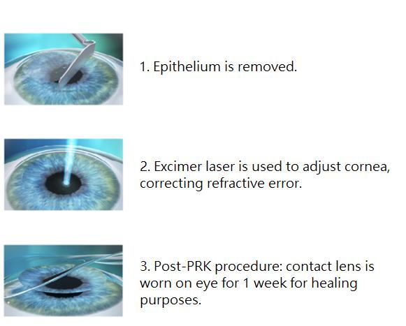 Step-by-step PRK procedure