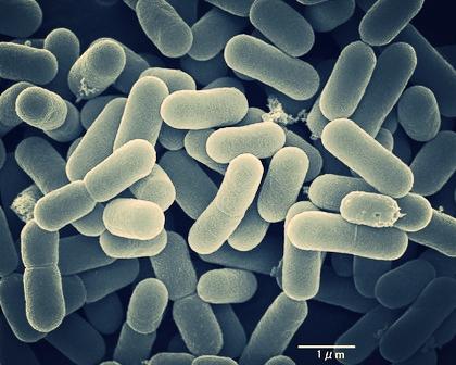 Lactobacillus under a microscope.