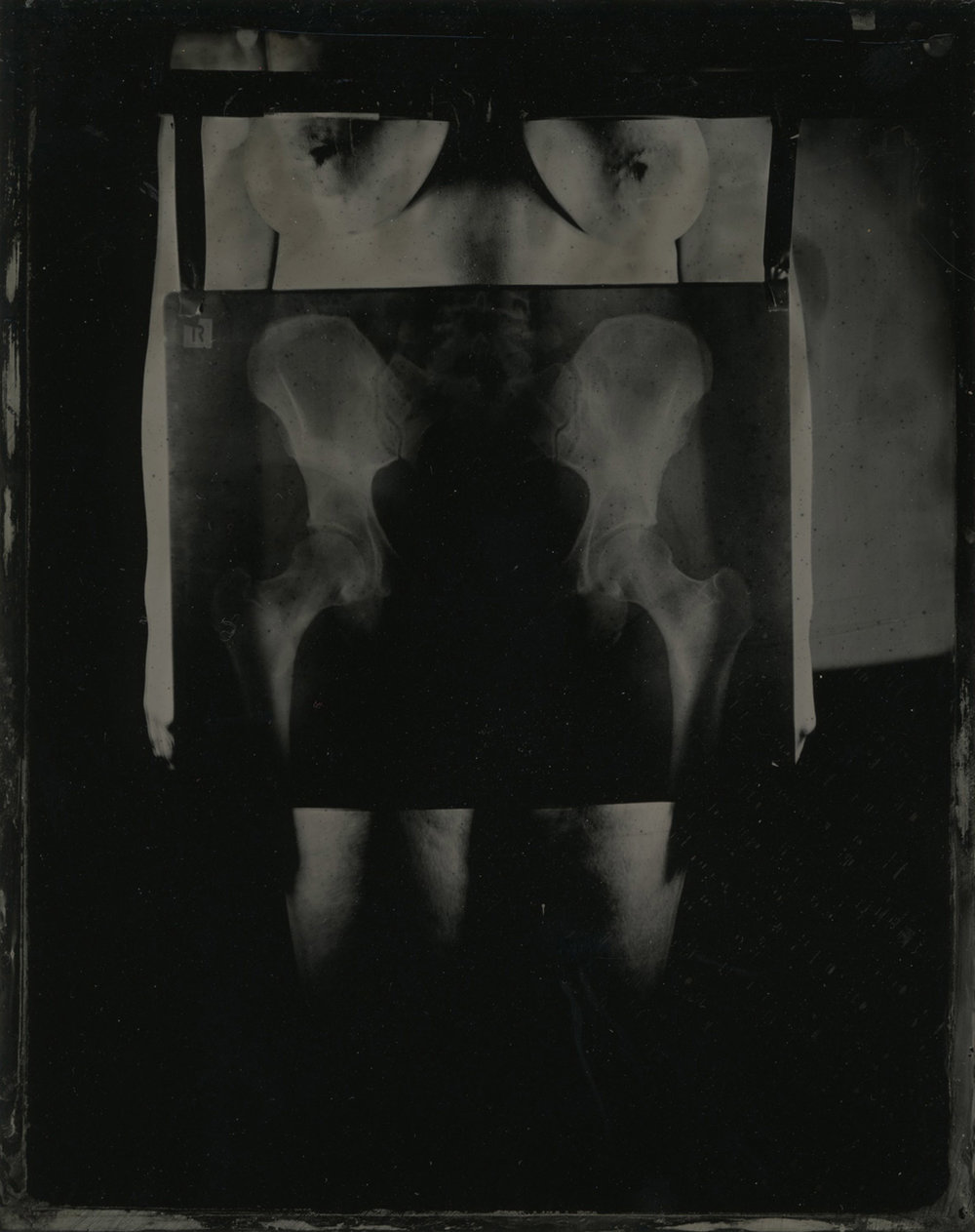 Title : Pelvis   By:  Keira Hudson    https://keirahudson.weebly.com/