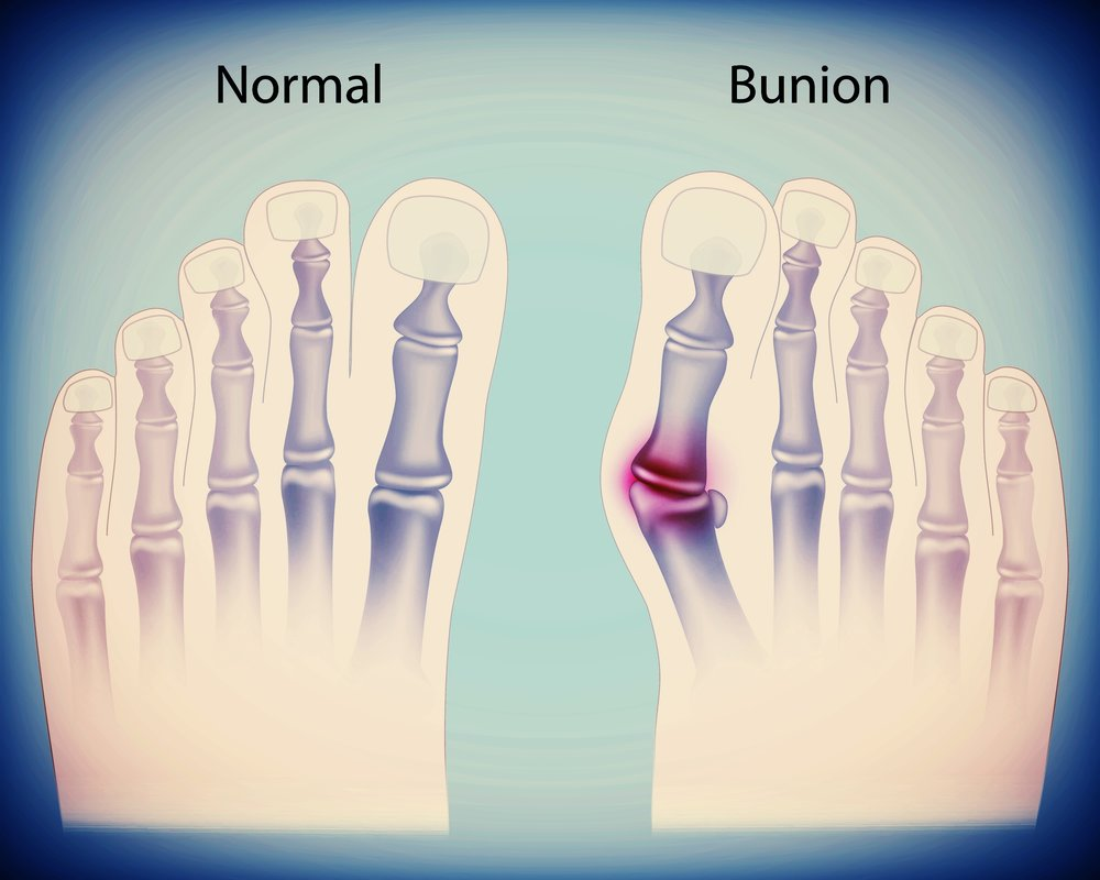 bunion pain relief and correction - bunion specialist podiatrist ross cohen serving  glen burnie, md