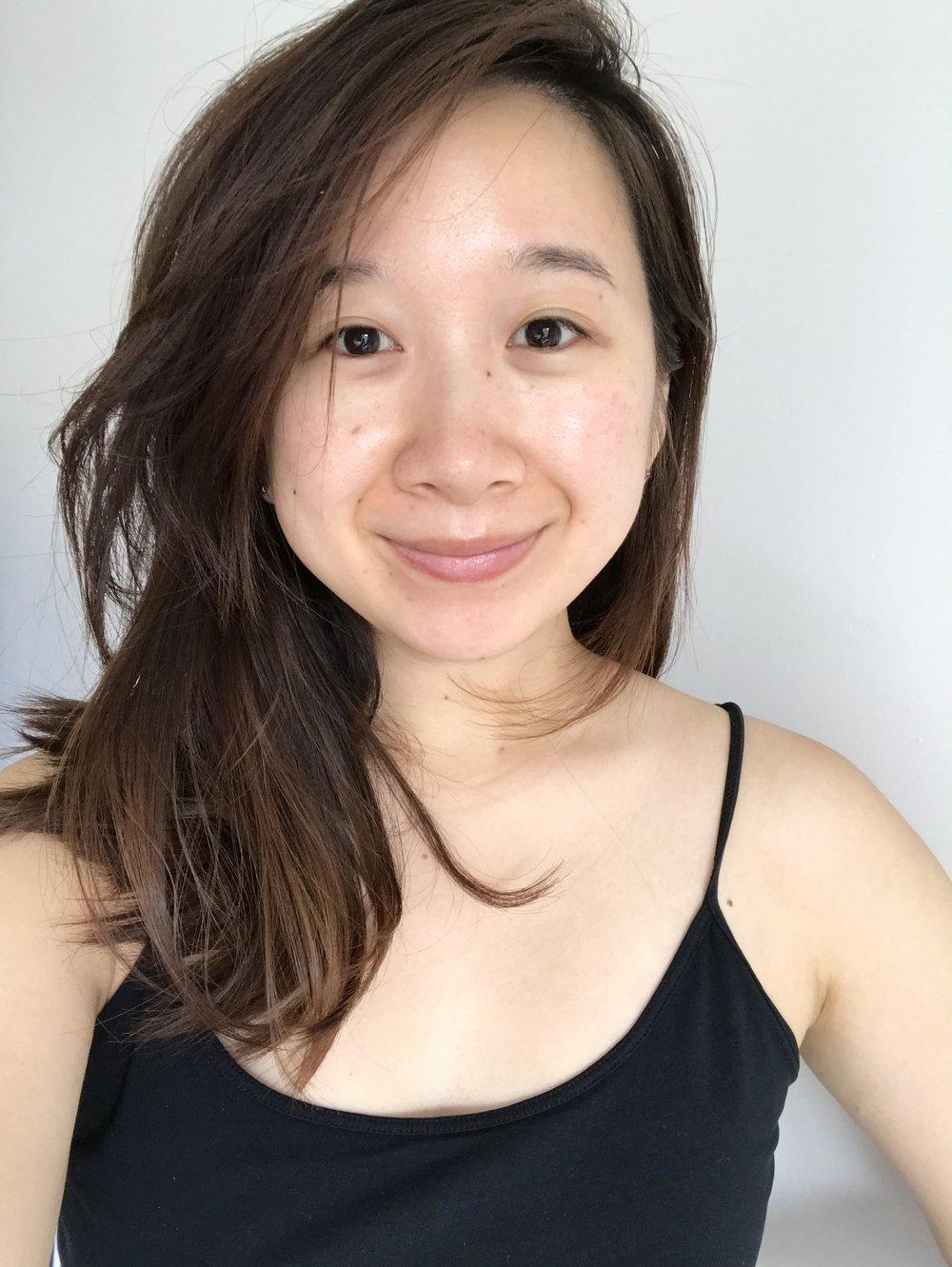 Skin after 7 days.