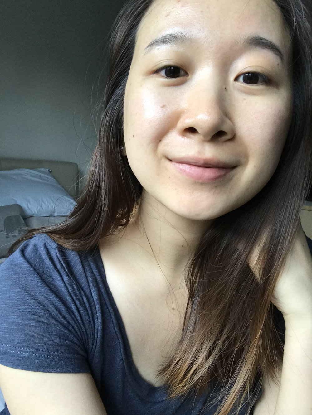 Taken on day 13.My pores are less visible and my cheeks are not red.