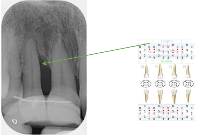 Pre–op standardised radiograph (12 months later)