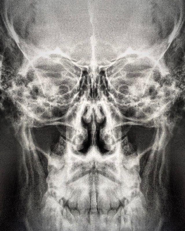 #X-ray #skull #radioactivephotography #radioactive