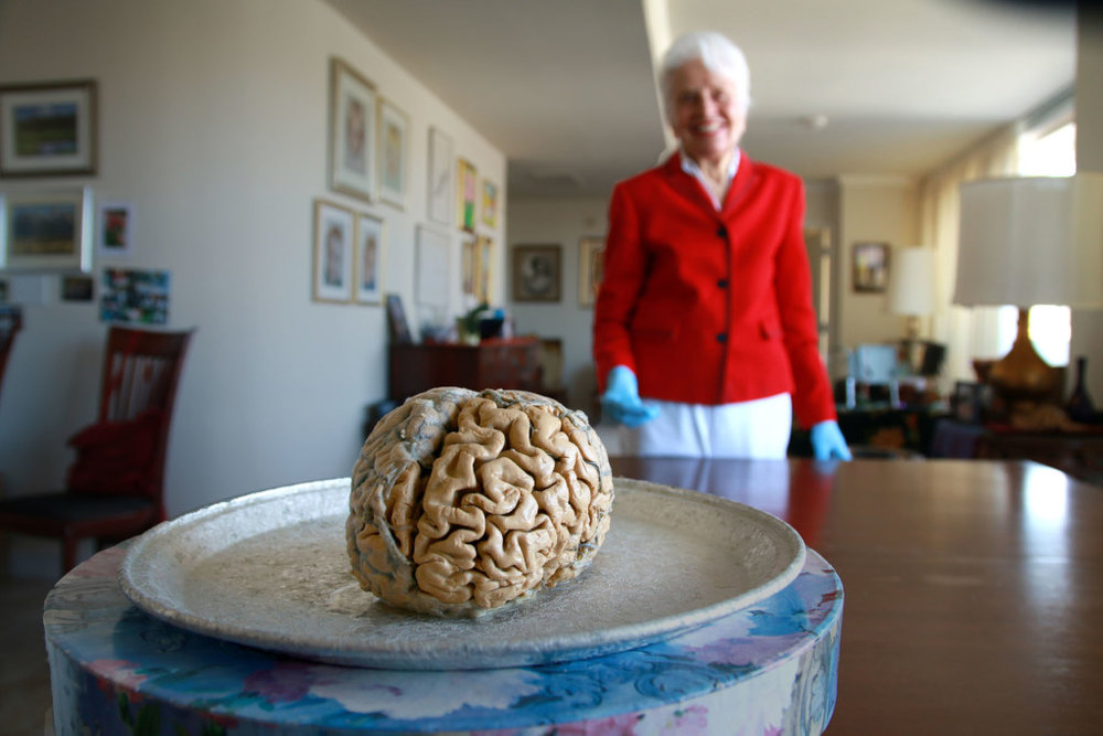 http://www.bioethicsscreenreflectins.com/2017/03/my-love-affair-with-brain.html