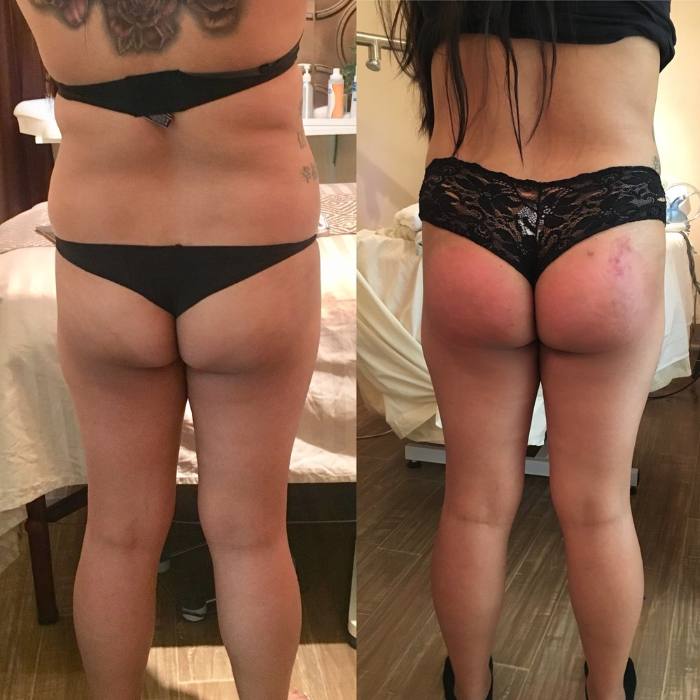 before & after - After 6 sessions
