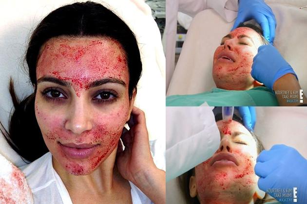B0054_vampire-facial_630x420.jpg