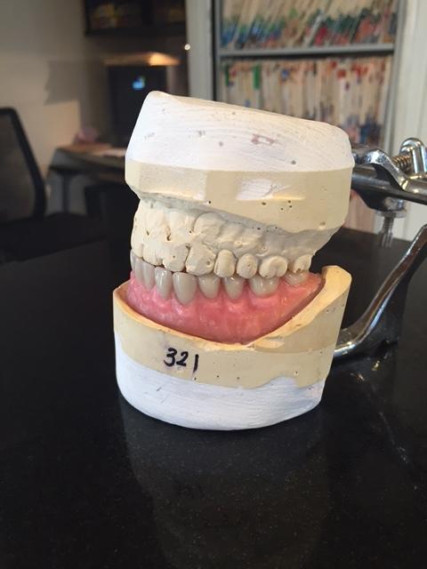 Wax Denture