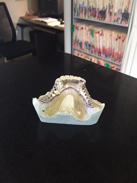 Metal Framework for Dentures