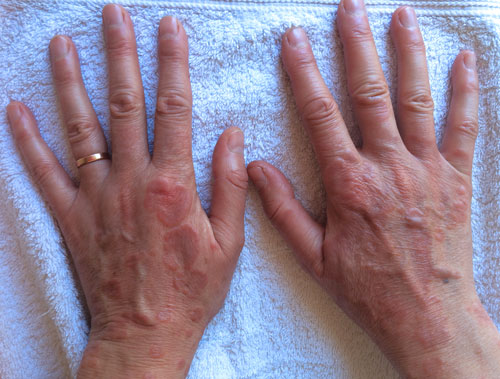 Tania's hands before treatment