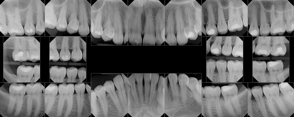 Example image of a full mouth xray