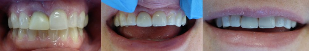 Dental implant results from Rancho Santa Fe Cosmetic & Family Dentistry - First entry
