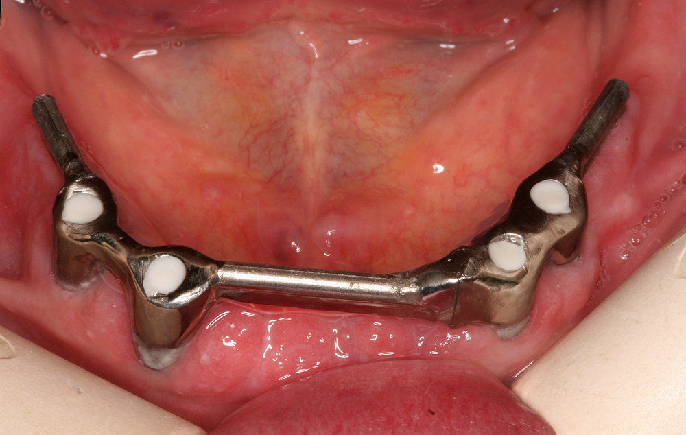 Example of bar-retained implant-supported denture